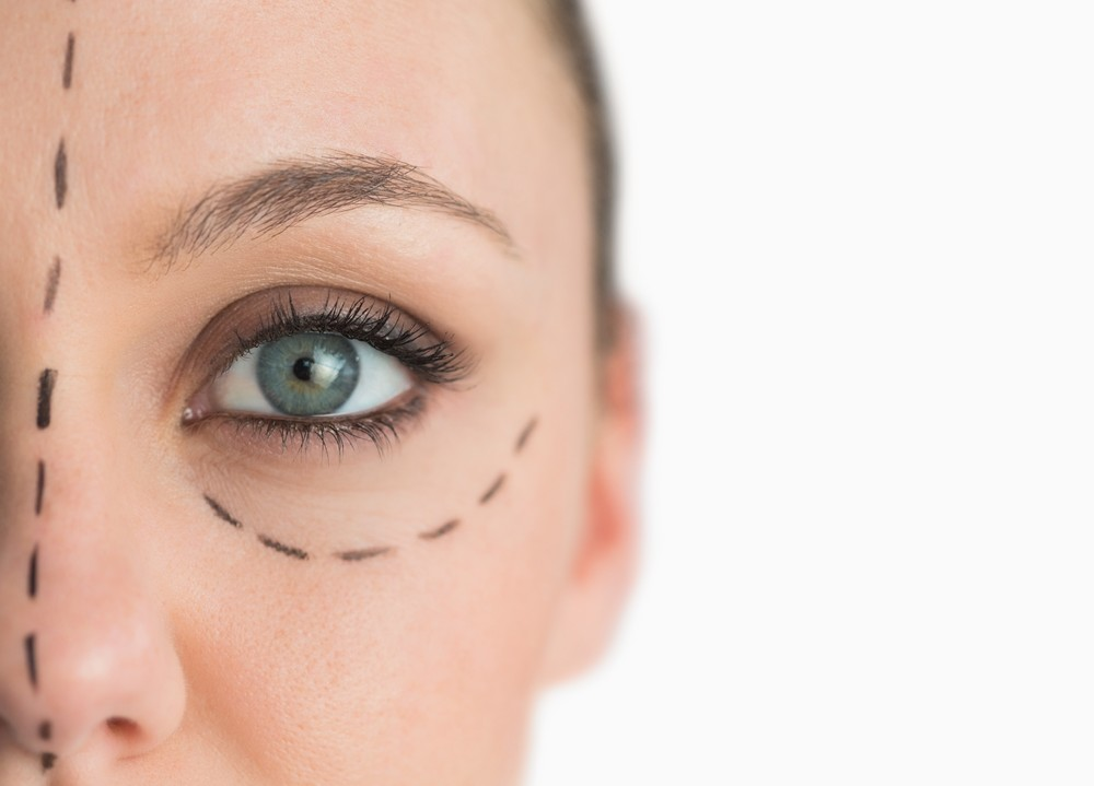 Surgical Blepharoplasty